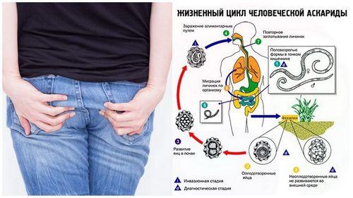 Симптомы аскаридоза у ребенка
