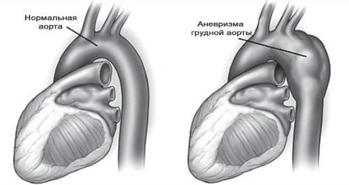 Лечение аневризмы дуги аорты