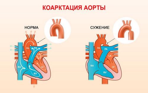 Коарктация аорты, лечение