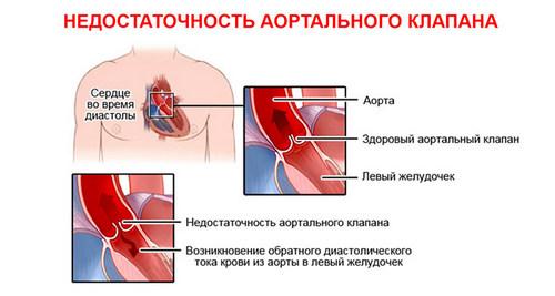 Лечение аортальной недостаточности