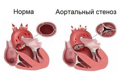 Лечение аортального стеноза