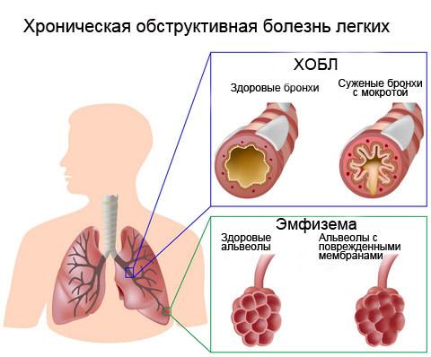 ХОБЛ, лечение