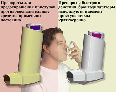 Бронходилататоры, останавливают обострение, симптомов астмы