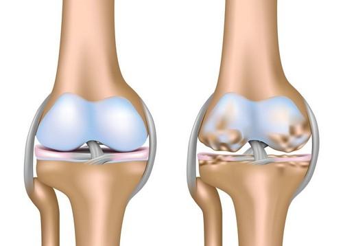 Лечение артроза, коленных суставов