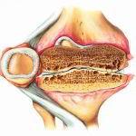 Артрит коленного сустава, лечение, народными средствами