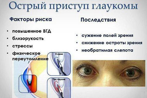 Снять симптомы глаукомы