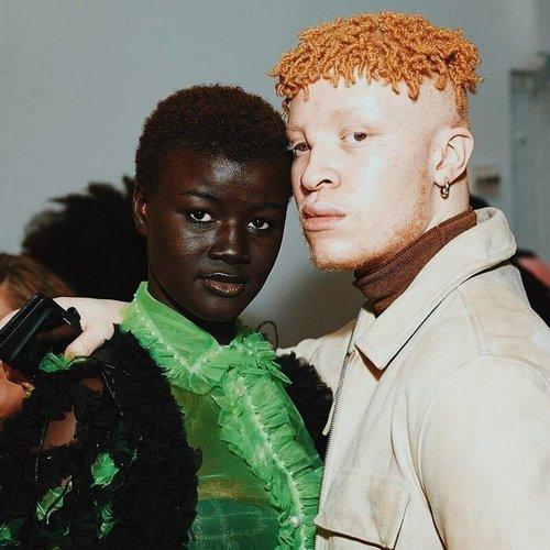 10. Еще один афроамериканец с непривычным природным цветом волос Витилиго, альбиносы, афроамериканцы, генетика, гетерохромия, красота, мутация