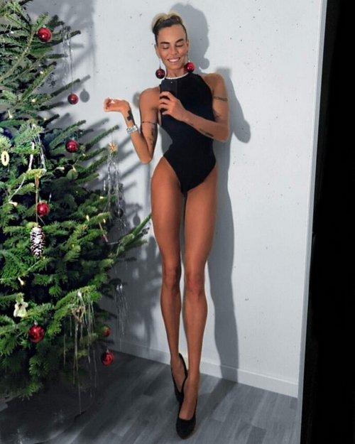 16. Девушка с непропорционально длинными ногами Витилиго, альбиносы, афроамериканцы, генетика, гетерохромия, красота, мутация