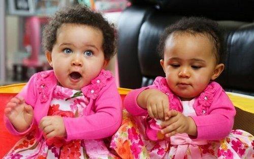 7. Первые «черно-белые близнецы», рожденные в Британии Витилиго, альбиносы, афроамериканцы, генетика, гетерохромия, красота, мутация