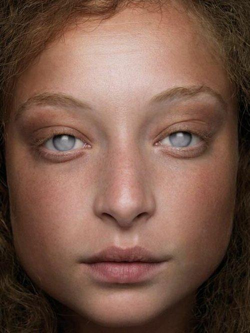 8. Странно-притягательные глаза Витилиго, альбиносы, афроамериканцы, генетика, гетерохромия, красота, мутация