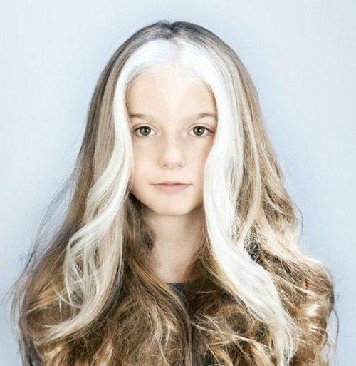 9. С самого детства она живет с седыми прядями Витилиго, альбиносы, афроамериканцы, генетика, гетерохромия, красота, мутация