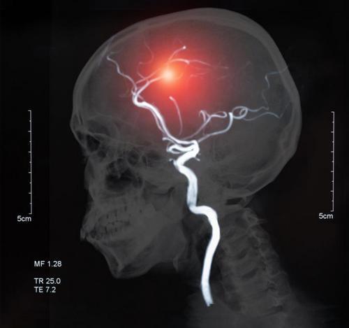 Катастрофа в голове: почему происходят инсульты и как их избежать. Изображение номер 9
