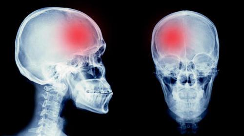 Катастрофа в голове: почему происходят инсульты и как их избежать. Изображение номер 6