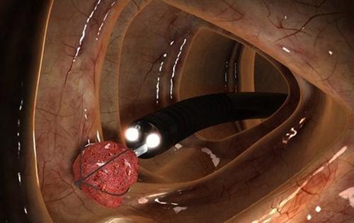 Проведение ректороманоскопии