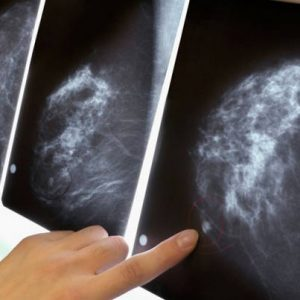 Кальцинаты молочных желез: причины, симптомы, лечение