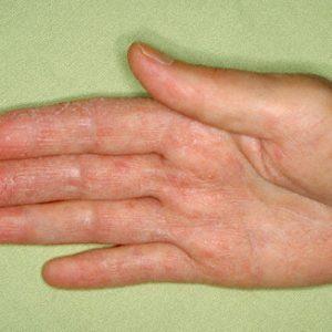 Нейродермит: симптомы и лечение заболевания у взрослых