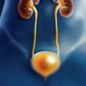 Радиационный (лучевой) цистит: симптомы и лечение