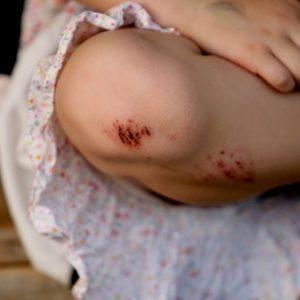 Рана у ребенка: чем обрабатывать, чем мазать, чем промывать, первая помощь