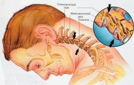 При нестабильности шейного отдела возникает головная боль