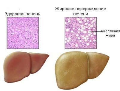 Причины стеатоза печени