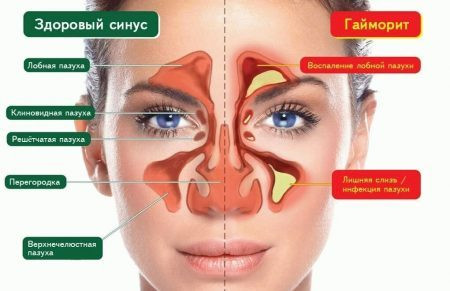 Гайморит или мигрень симптомы и лечение