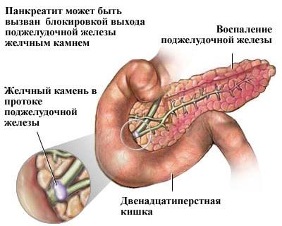 Народные средства при болях внизу живота thumbnail