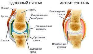 Методы лечения артрита