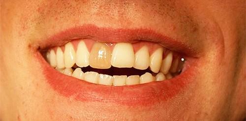 Почему болит мертвый зуб