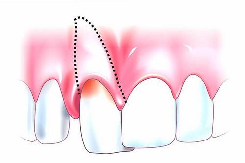 Причины вывиха зуба