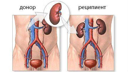 Стоимость операции по пересадке почки в России и в мире