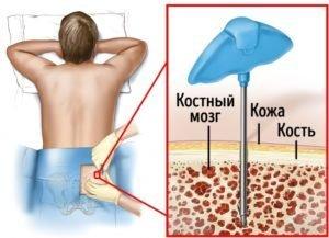 Есть ли опасность для человека сдающего костный мозг?