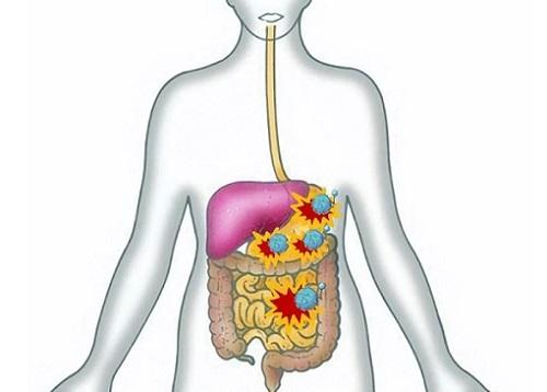Вирусный энтерит: лечение, причины, симптомы