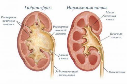 Строение почечной лоханки и ее заболевания