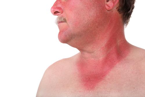 Геморрагическая лихорадка с почечным синдромом: лечение, причины, симптомы