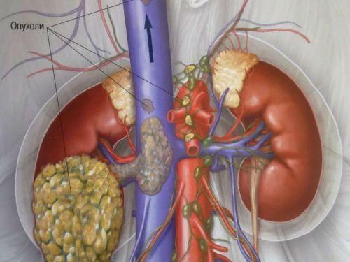 Симптомы рака почек
