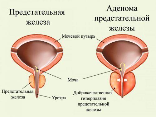 Затрудненное и болезненное мочеиспускание у женщин и мужчин