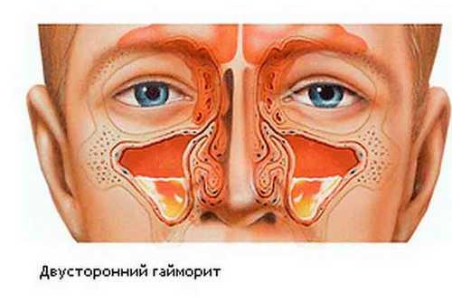 Гайморит, лечение, профилактика