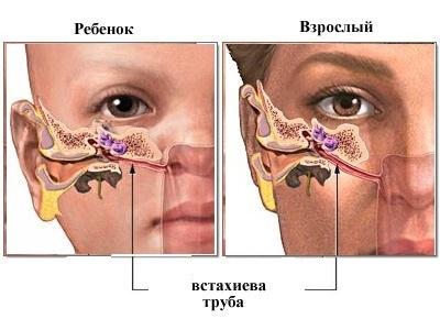 Евстахиит, лечение