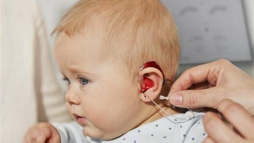 Тугоухость, протезирование слуха
