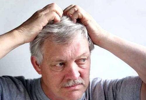 Зуд кожи головы, причины, лечение
