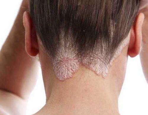 Лечение грибка головы