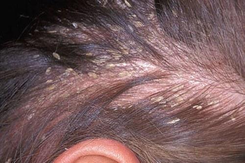 Перхоть и болячки на голове у детей