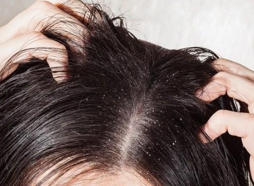Раздражение кожи головы, лечение