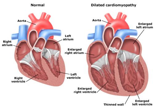 Лечение кардиомиопатий