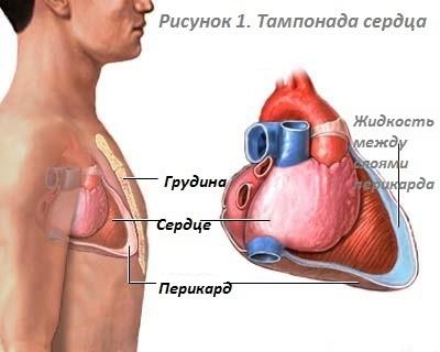 Лечение тампонады сердца