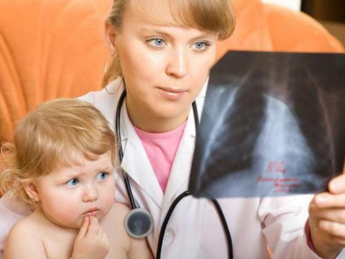 Стоит ли делать прививку, от пневмонии детям?