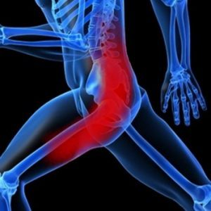 Защемление седалищного нерва, признаки, лечение
