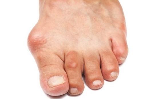 Артроз большого пальца ноги, лечение
