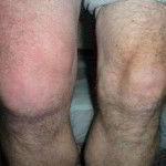 Лечить бурсит коленного сустава