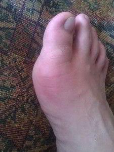 Артрит пальцев ног, симптомы, лечение